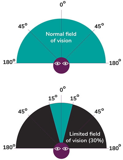 Diagram showing a semi-circle with a 180 degree of vision and a 30 degree field of vision